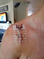 Post-op shoulder repair. Eeek!